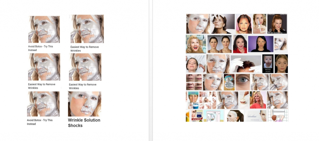 Botox_Diptych by Christine Bettis